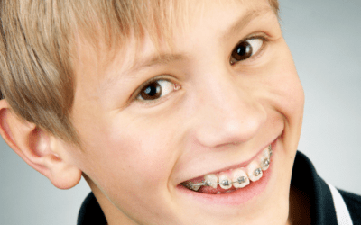 Braces for Children: What Are the Basics?