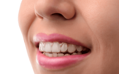 5 Steps To A Straight Smile With Invisalign