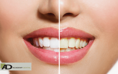 Tips to Prevent Tooth Discoloration After Teeth Whitening